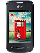 LG L35 – технические характеристики